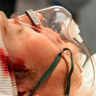 Перелом основания черепа – симптомы, первая помощь