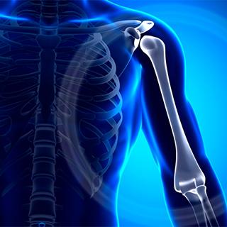 Фиксация плечевого сустава при переломе бугорка кости как зафиксировать