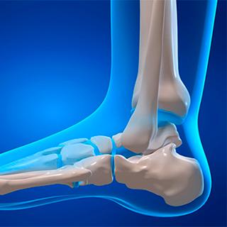 Перелом плюсневой кости стопы: симптомы, лечение