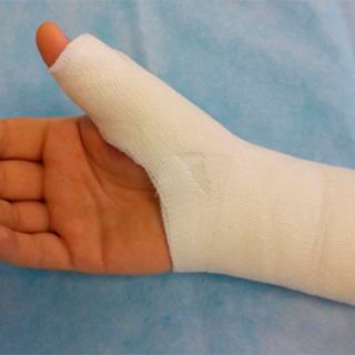 Перелом большого пальца на руке симптомы фото