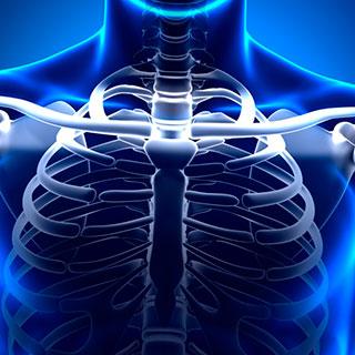 Синдром скользящего ребра: что это, симптомы и лечение