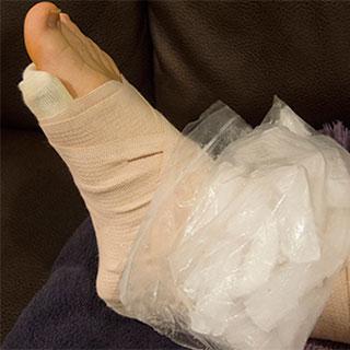 Ушиб голеностопа лечение в домашних условиях быстро