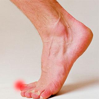 Симптомы и действия при ушибе пальца на ноге