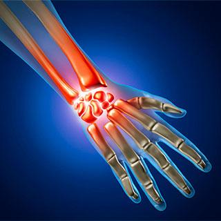 Вывих руки кисти запястья лучезапястного сустава симптомы и лечение что делать