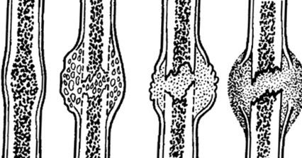 Стадии формирования костной мозоли