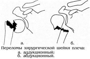 Аддукционный и абдукционный переломы