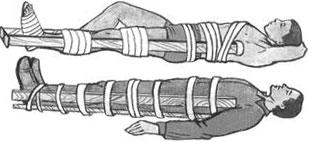 Изображение - Перелом в области коленного сустава perelom-kolena-foto-3
