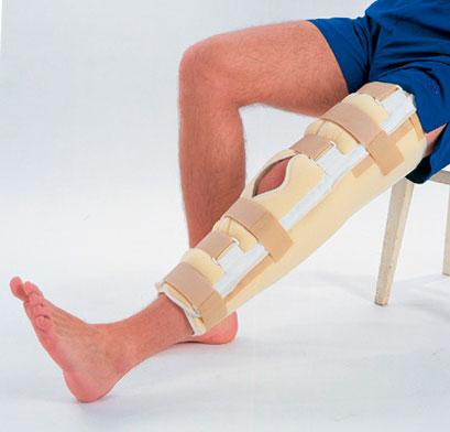 Изображение - Перелом в области коленного сустава perelom-kolena-foto-4