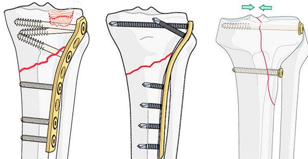 Изображение - Перелом в области коленного сустава perelom-kolena-foto-5