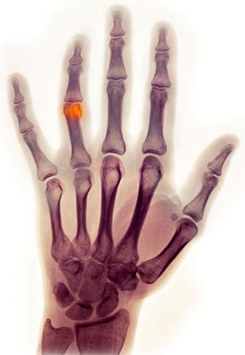 Перелом пальца на руке: лечение, симптомы и первая помощь