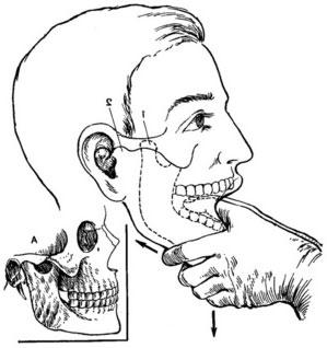 Изображение - Подвывих челюстного сустава podvyvikh-chelyusti-foto-3