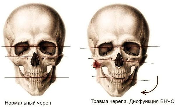 растяжение связок челюсти симптомы