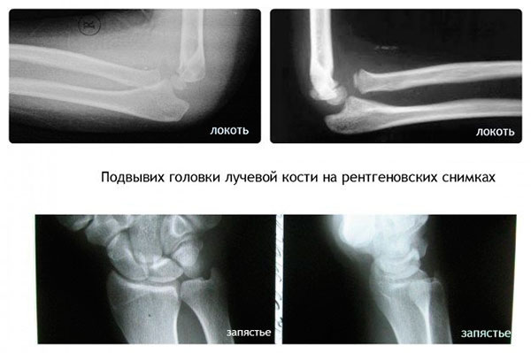 Изображение - Подвывих локтевой кости в лучезапястном суставе podvyvikh-loktevogo-sustava-u-rebenka-foto-3