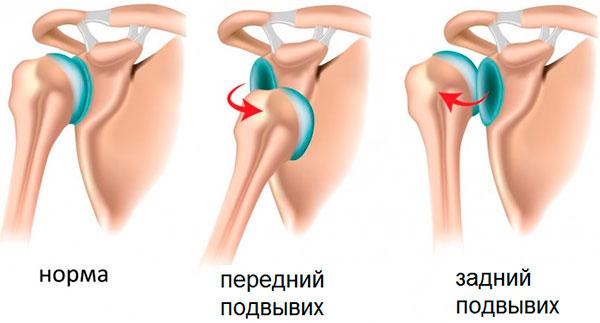Изображение - Смещение плечевого сустава последствия podvyvikh-plechevogo-sustava-foto-2