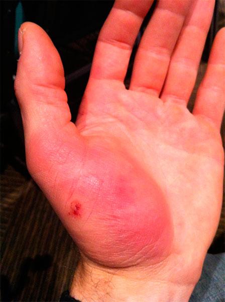 Ушиб пальца на руке: лечение, симптомы и первая помощь
