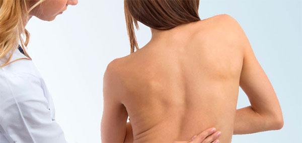Осмотр спины специалистом