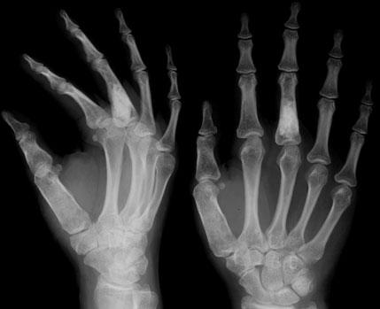 Рентген пальца