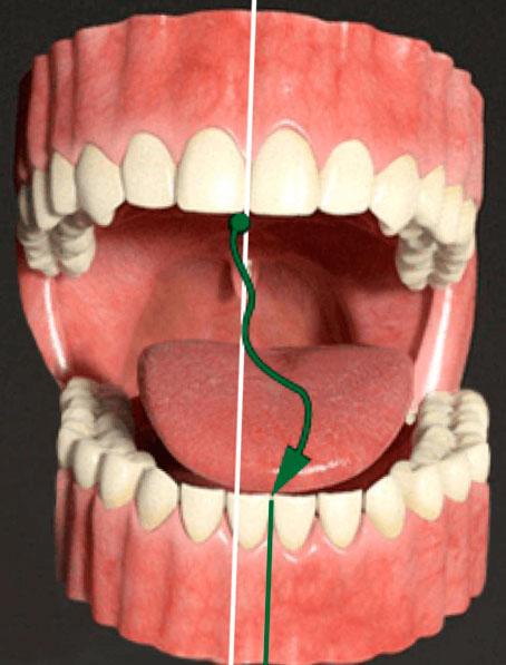 Вывих нижней челюсти: симптомы и лечение травмы, первая помощь пострадавшему, вывих челюсти