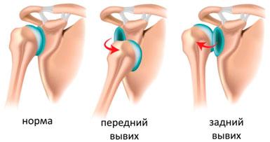 Изображение - Вывих руки в плечевом суставе лечение vyvikh-plechevogo-sustava-foto-2